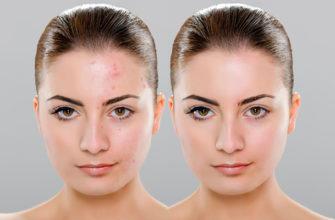 Быстрая ретушь кожи в фотошопе